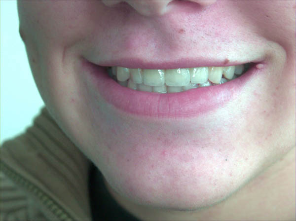 zähne wandern zahnlücke